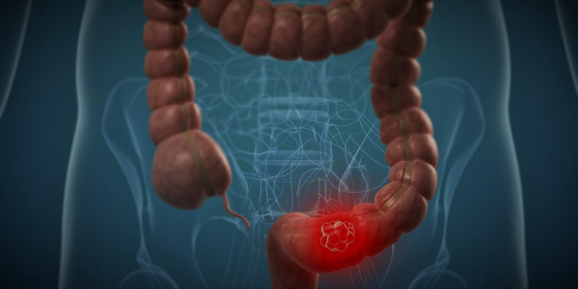 Kanker usus perlu diantisipasi